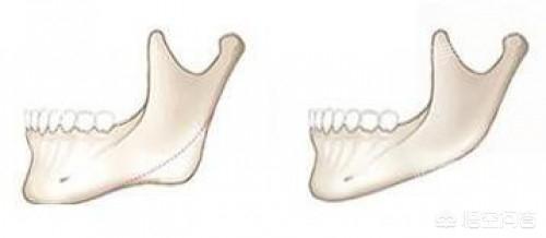 隆下巴手术诊治后的恢复过程是什么样的?