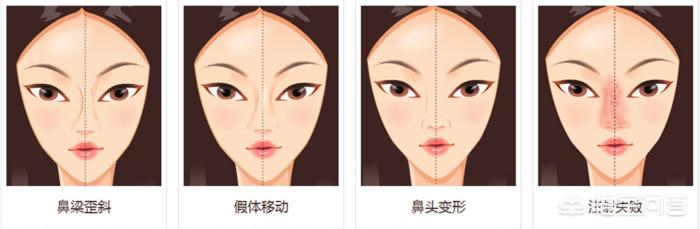 整形后两边脸不对称怎么办