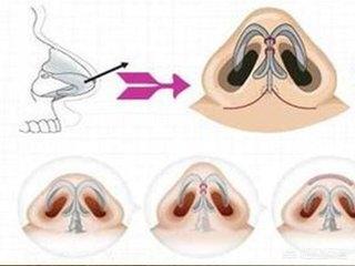 男性隆鼻与女性隆鼻有区别吗?