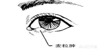 睑腺炎图片,眼皮上有麦粒肿是怎么回事?