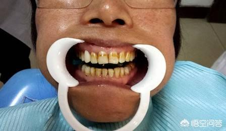早晚都刷牙,为啥牙齿还是黄牙?