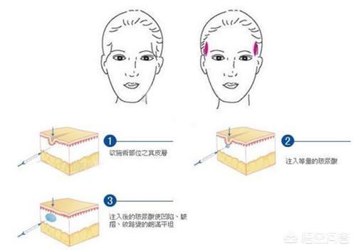 玻尿酸隆鼻有什么副作用吗?