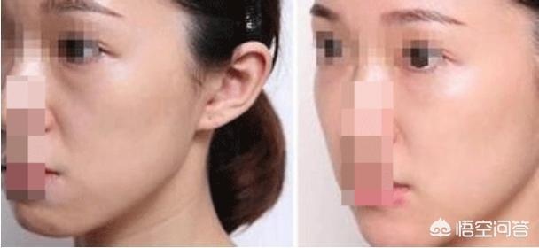 泪沟严重,注射玻尿酸效果不佳,自体脂肪填充怎么样?
