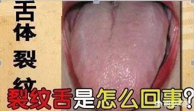 舌头图片看病图解,舌体有裂纹,是什么原因导致的?