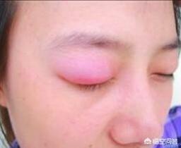 面膜精华液擦手红肿:化妆品用了二十天后眼睛肿了,该怎么办?(相关长尾词)