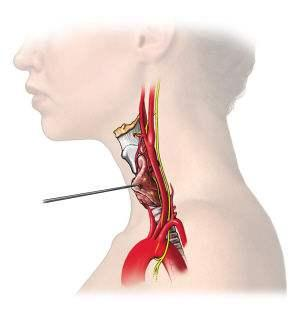 为什么会得肾结石?肾上腺功能的各项指标有哪些意义?