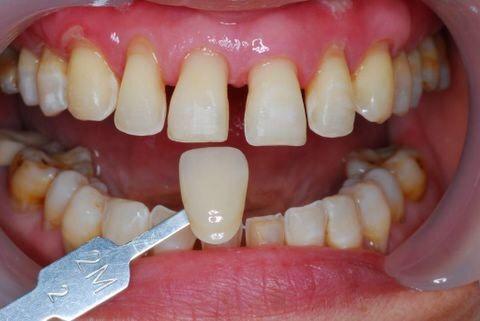 什么是牙齿美容?有必要做吗?