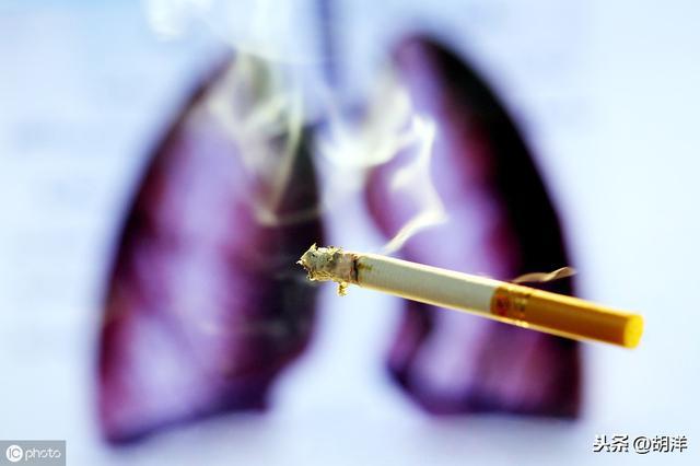 肺腺癌1a期术后复发率 1a期肺腺癌复发率高不高?