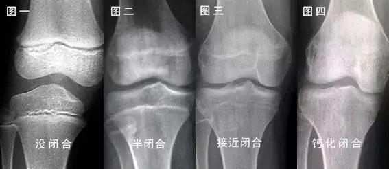 上海嘉定小孩按摩推拿:防止妊娠纹几个月开始按摩