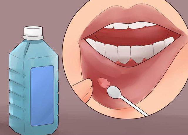 口腔溃疡好疼,有什么小窍门能迅速治愈吗?