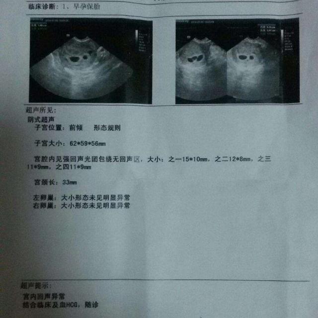 葡萄胎生下宝宝的图片,葡萄胎是正常受孕引起的吗?