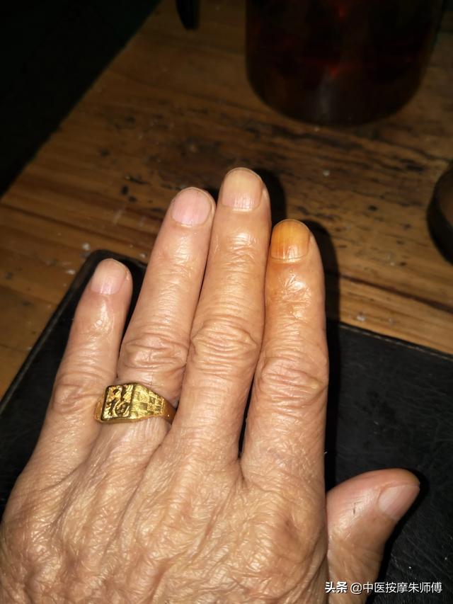 2012秋冬光疗美甲图片:新冠肺炎疫情期间,你的指甲变成了什么样子?(相关长尾词)