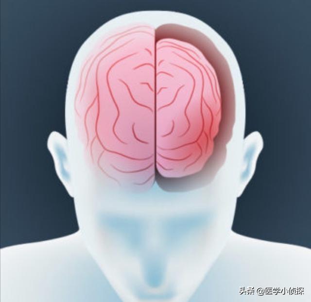 脑萎缩一般多大年龄会出现?该注意什么?
