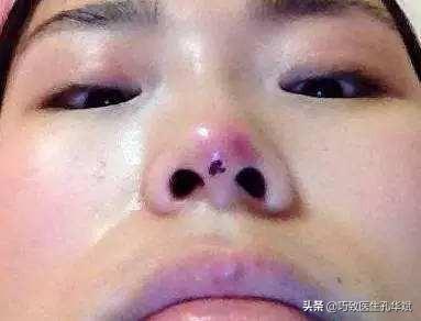 最近想隆鼻做一个线雕,怎么样?