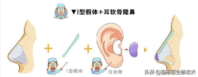 鼻型矫正(鼻型矫正器有用吗)
