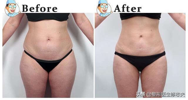 科学正确的减肥方法(有效减肥的科学方法)