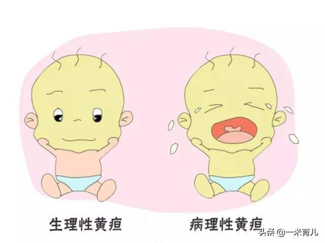 新生婴儿黄疸标准,刚出生的小孩黄疸正常值是多少?