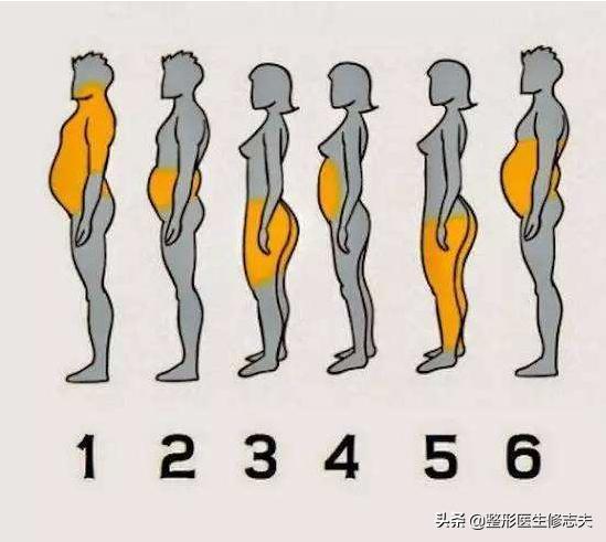 减肥心切可以理解,吸脂减肥能行吗?