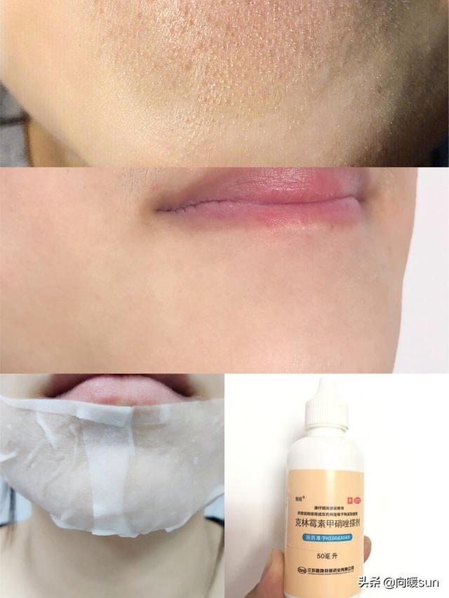 面部除皱最好的方法是什么?