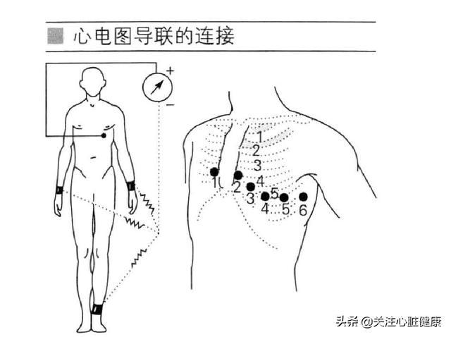 心电图导联位置口诀,做心电图时导联位置如何安放?