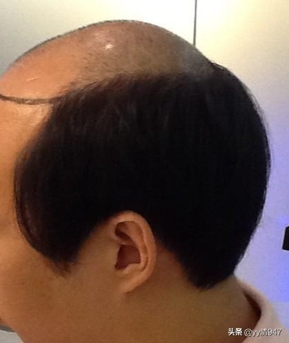 西安夜生活论坛 :经常按摩头皮可以缓解脱发吗?