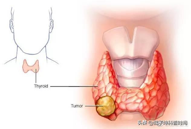 肾结石能活一两年?甲癌不提议做碘-131的其原因是甚么?