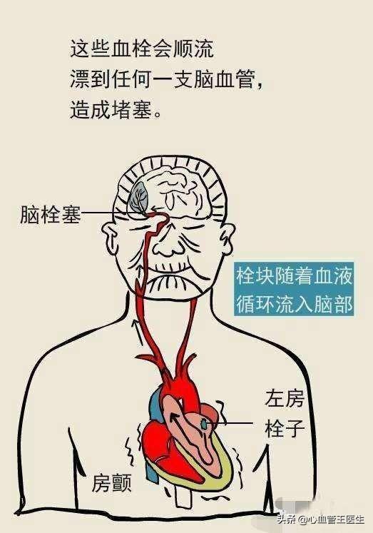 """心率变异性,""""窦性心律不齐""""是心脏病吗?"""