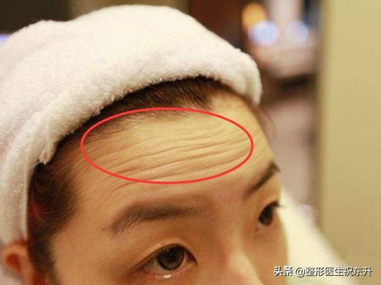 额头填充以后能做脱毛吗