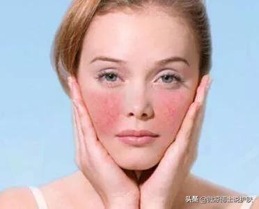 皮肤粗糙,毛孔粗大,坑坑洼洼用什么护肤品可以改善?