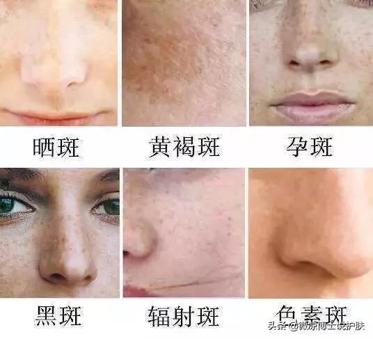 脸上的雀斑是怎么形成的?有哪些祛斑的方法?