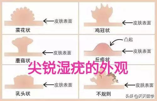 尖锐湿疣的危害(湿锐尖疣多长时间潜伏期)
