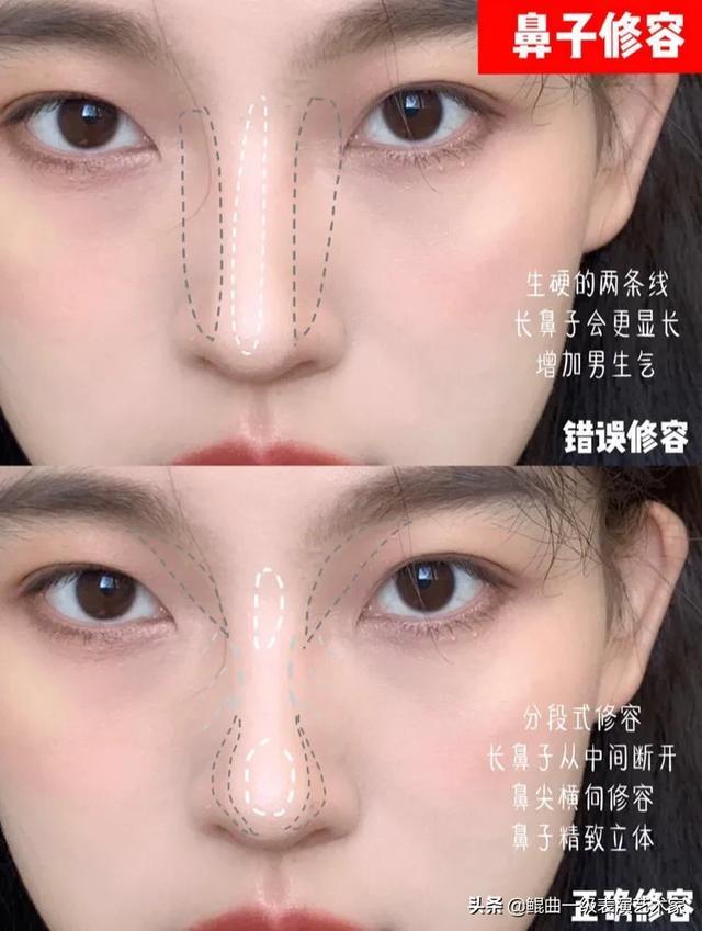 有没有什么不整容可以瘦鼻头的方法?鼻头真的太大了?