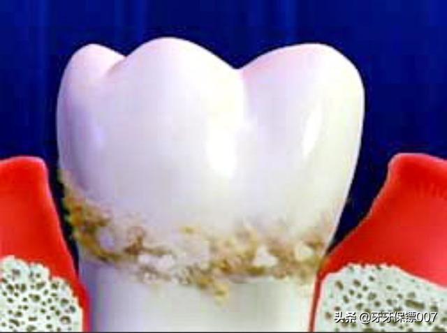 有什么牙膏去牙结石,牙垢?