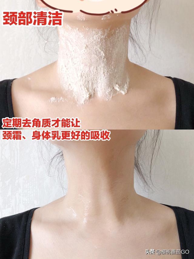 怎么祛除颈纹(怎么祛除颈纹最有效的方法)