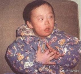 唐氏儿典型面容图片,孩子出生能确诊唐氏儿吗?