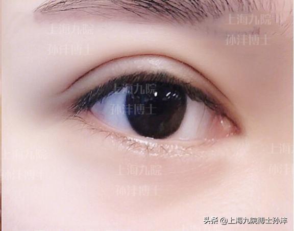 开眼角有点大了,可以修复吗?